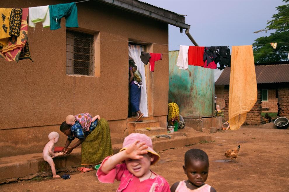 Albinism in Tanzania.